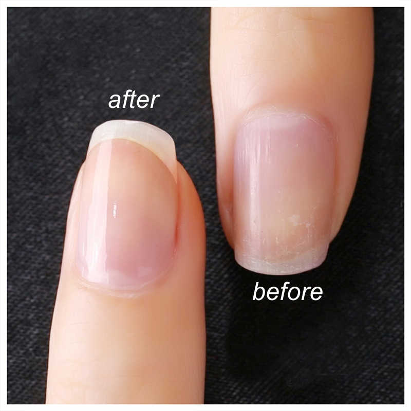 Colorless nails