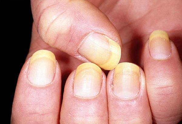 После шеллака портятся ногти