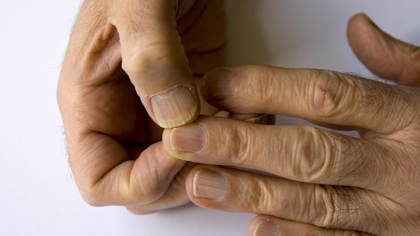 Split fingernails treatment