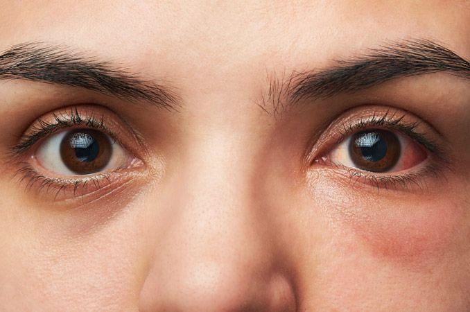 Pinki eye