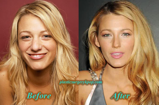Did blake lively get breast implants