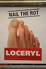 Fungus on toenails treatment over the counter