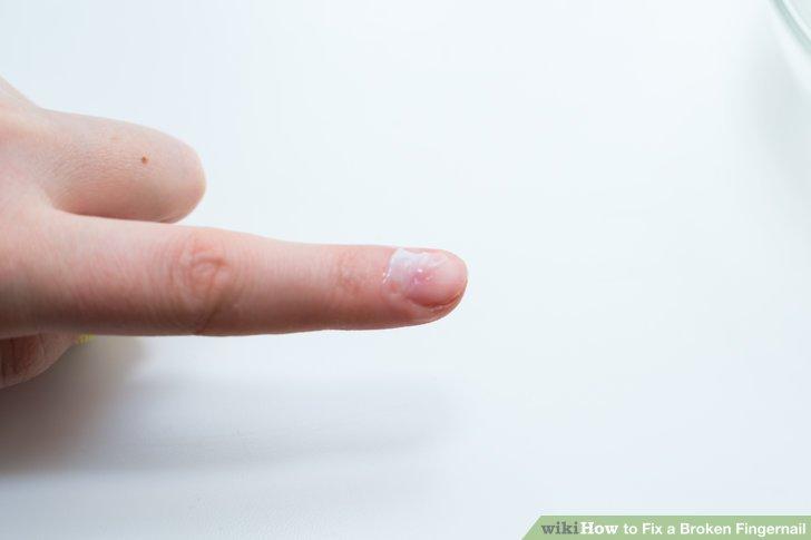Image titled Fix a Broken Fingernail Step 22