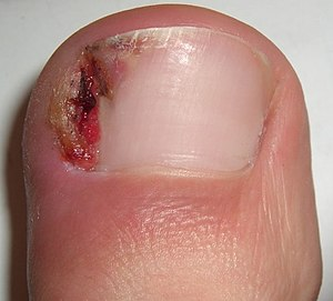 Do ingrown toenails grow back