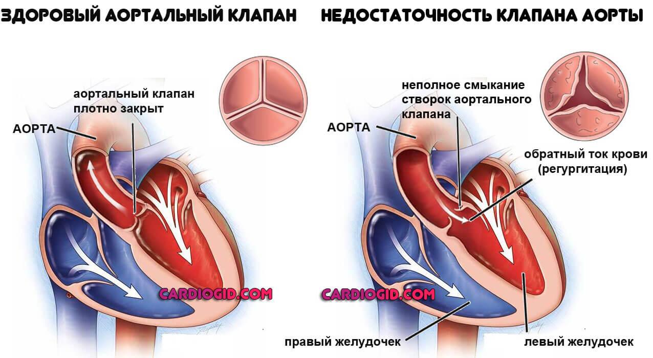 До якого лікаря звертатися якщо важко дихати