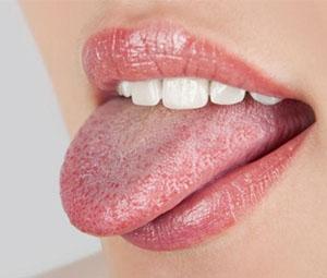Причины белого налета на языке у взрослого человека