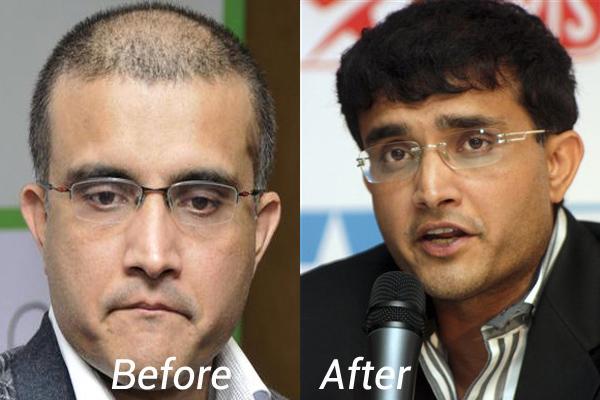Celebrities hair transplants