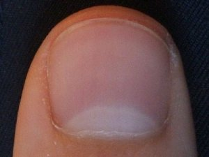 Large moons on fingernails