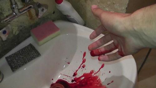 Рука в бинте з кров'ю