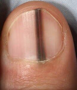 Black splinter lines in fingernails