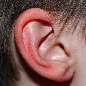 Почему краснеют уши по вечерам