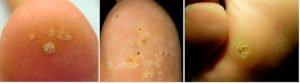 Бородавки на ногах причины и лечение
