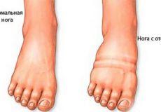 Сравнение отеков ног