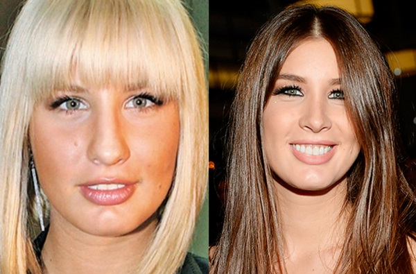 Кэти Топурия - фото до и после пластических операций. Какие операции делала звезда, сколько и как менялась её внешность