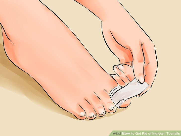 Image titled Remove an Ingrown Toenail Step 17