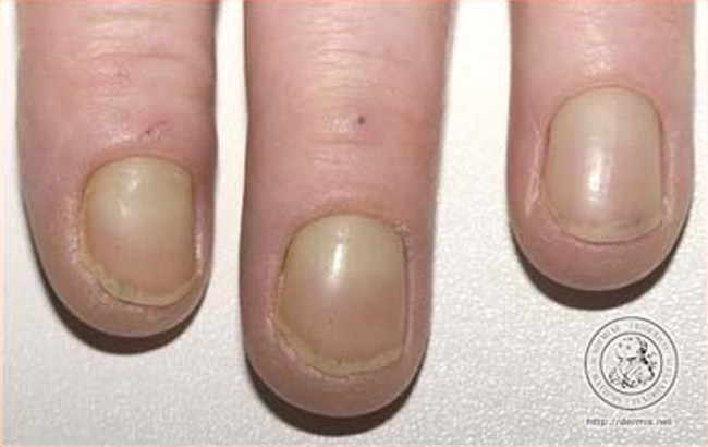 Fingernails turning yellow brown