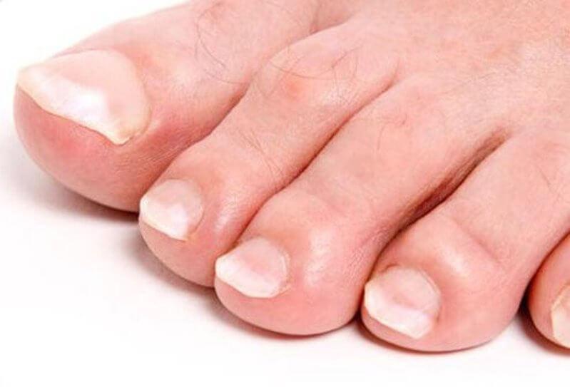 Clubbing toenails