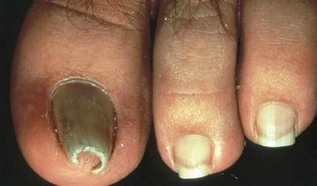 Pinched toenails