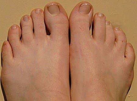 How to soften hard toe nails