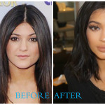 Celebrities without plastic surgery