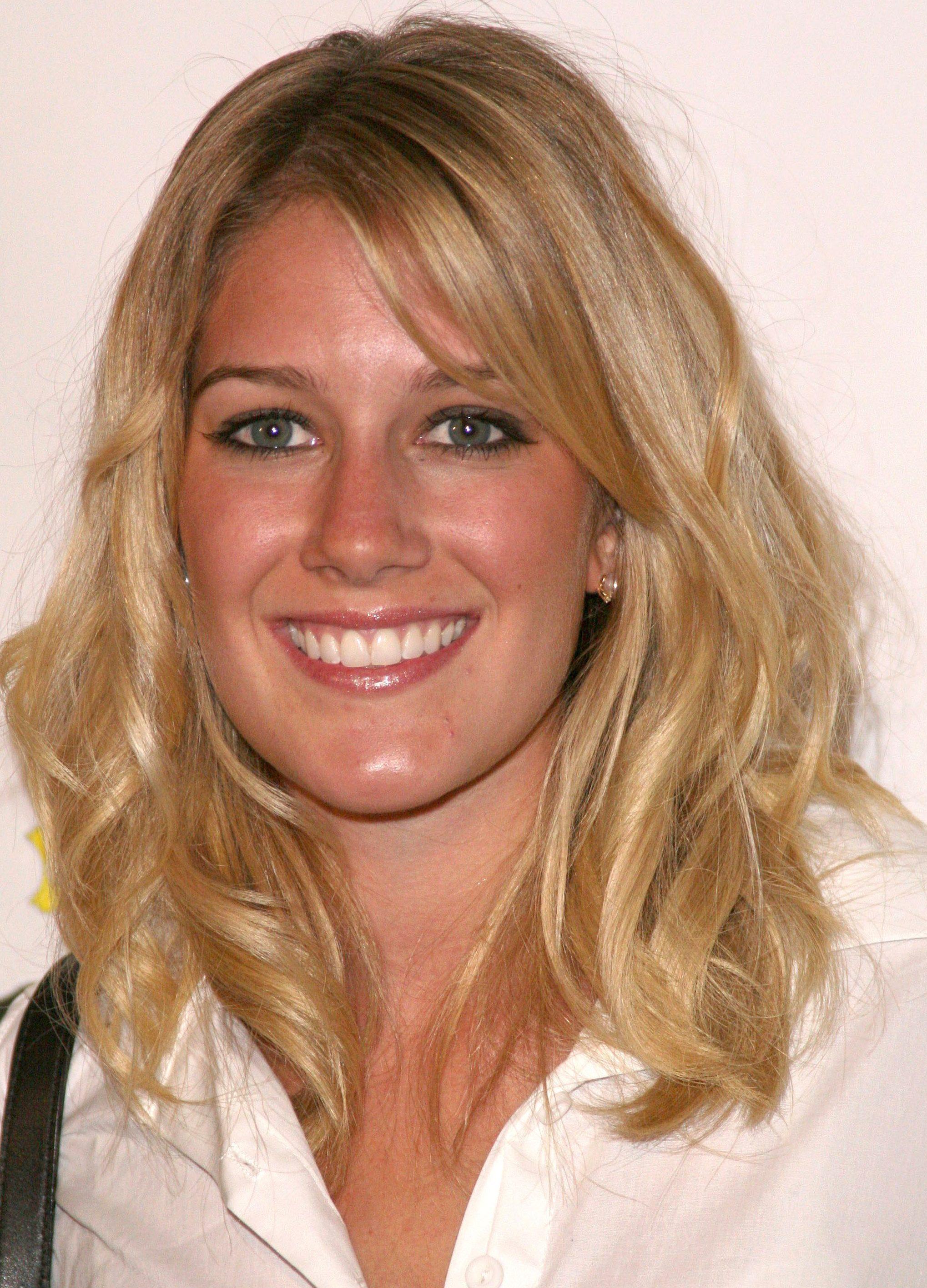 Lauren conrad plastic surgery
