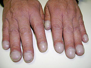 Clubbed nails causes