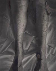 Berend Strik, Morfine - Legs