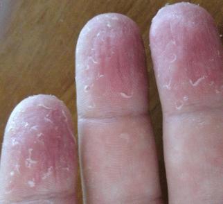 Split skin around nails