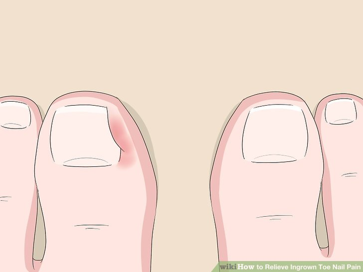 Pain in nails cause