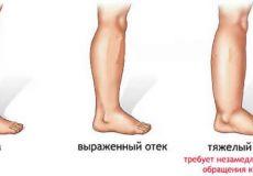 Отеки рук и ног