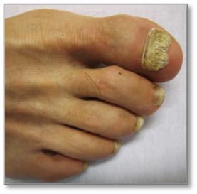 Fungal infection on nails