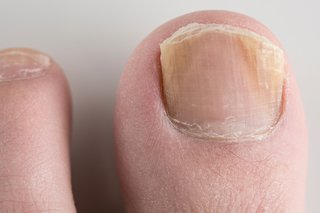 Fungal infections in toenails