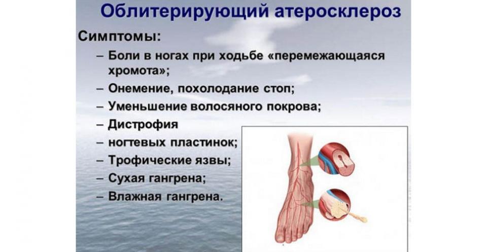Атеросклероз - причини, ознаки, симптоми і лікування