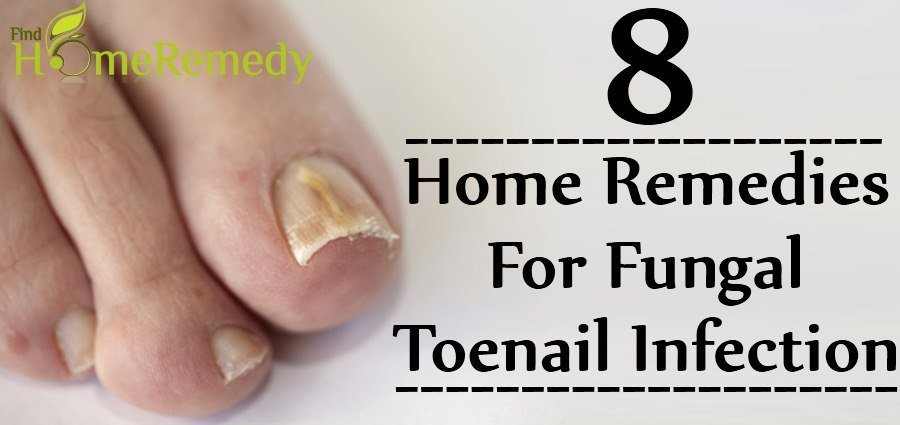 Home remedies for fungal toenails