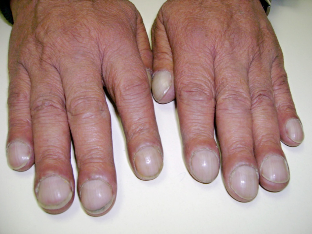 Health signs in fingernails