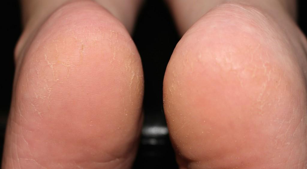 Dry Cracked Heel Remedy