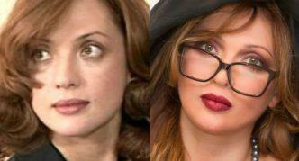 Ольга Дроздова до и после пластики