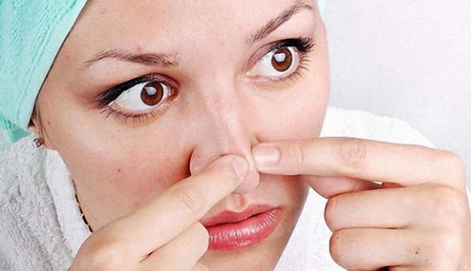 Такое выдавливание черных точек из пор - повышение риска травмировать кожу