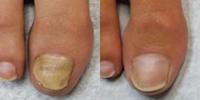 Fungus nails laser