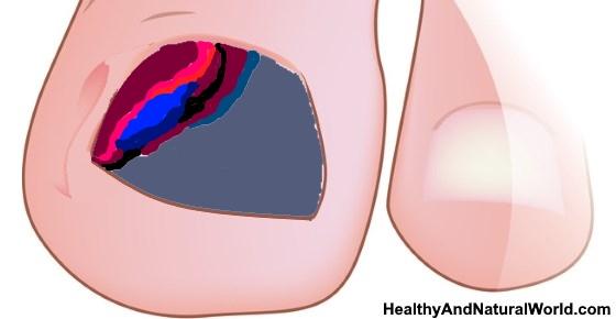 Bruising under toenails causes