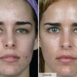 чистка лица от угрей до и после