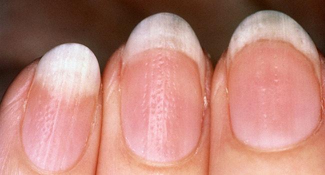 White marks on finger nails