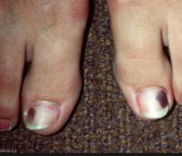 Both my big toenails are black