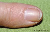 Brittle splitting nails