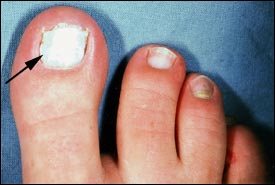 Cause of toenails turning white