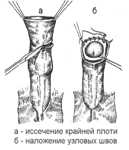 Обрезание мужчинам в домашних условиях
