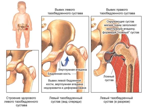 Обертывание суставов рожью причина онемения суставов ног и рук при сне