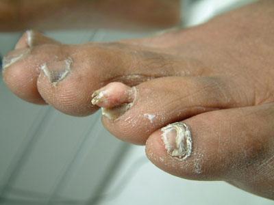 Horny toenails