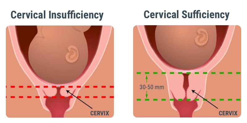 Weak Cervix in Pregnancy - What Are The Treatments For Cervical Insufficiency?