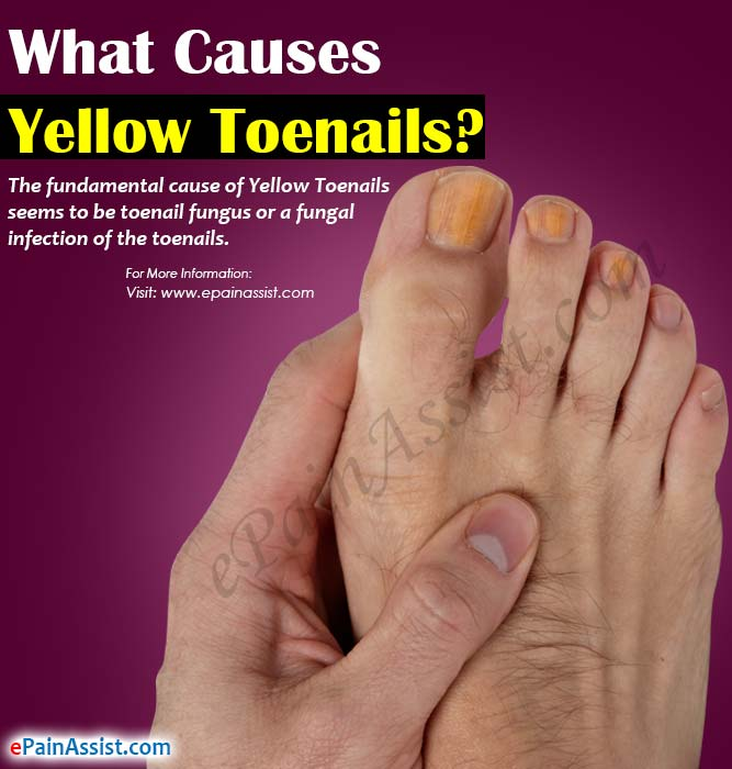 What causes yellow cracked toenails